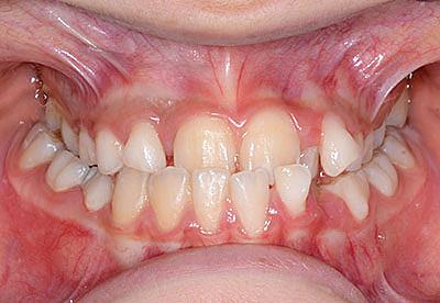 画像:歯列矯正が必要だが15歳まではしないというのが正解