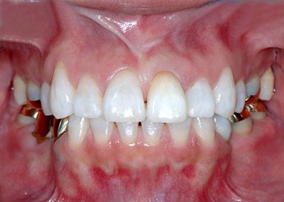 かよちゃん 神経治療失敗で茶色くなった歯ををホワイトニングで治す GVBDO
