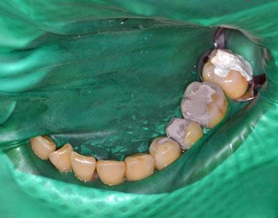 画像:歯の神経の治療の際に使われるラバーダムの様子