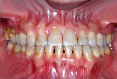 画像: 歯列矯正失敗で再矯正が必要なテトラサイクリン着色歯の地方公務員