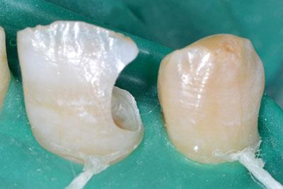 画像: 前歯の虫歯治療・レジンの下の虫歯3