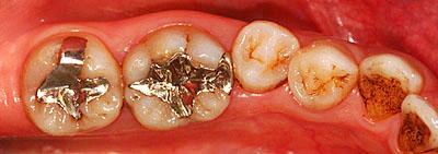 画像: 歯並びの悪い前歯がメタボンの30代の主婦の銀歯の様子