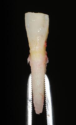 画像: 歯列矯正スリーインサイザルのための前歯の抜歯