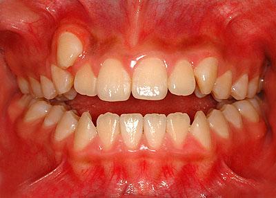 画像: 側湾症で悩む八重歯で開咬の女子中学生高校生の歯の様子