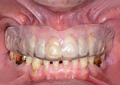 上のナイトガード,上のマウスピース,アメリカ歯科標準治療,G.V. BLACK DENTAL OFFICE, GVBDO