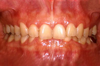 ↑抜歯矯正と非抜歯矯正の選び方、メリット、デメリット↑