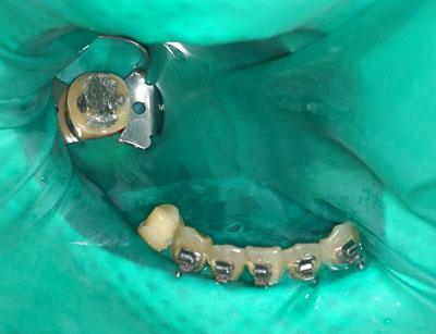 根尖病巣,前歯のレントゲン,歯の神経の治療,痛い歯,画像
