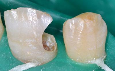 画像: 前歯の虫歯治療・レジンの下の虫歯2