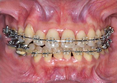 画像: 顎切り手術予定の歯列矯正失敗で顎関節症になった美容師の歯並び