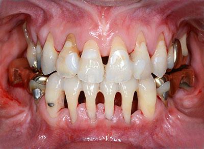 ↑歯列矯正のデメリットとリスク GVBDO↑