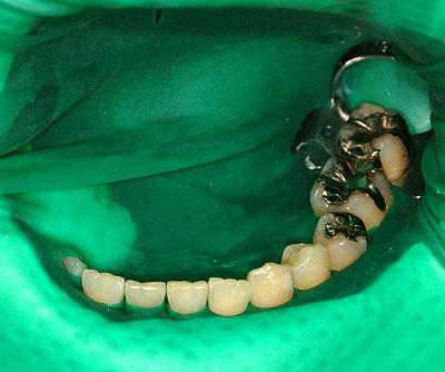 ↑1本抜歯でもインプラントは不要!一生持つブリッジの治療 GVBDO↑