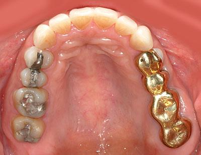 インプラントが不要になる歯列矯正 GVBDO