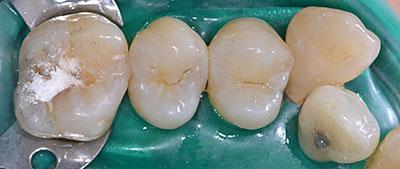 歯列矯正終了,11年後,ホワイトニング終了
