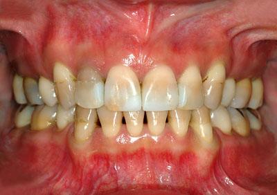 テトラサイクリン,着色歯,Tetracycline,ホワイトニング,歯を削る必要はない,理由, GVBDO