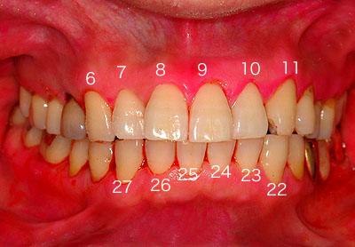 Universal Numbering System 永久歯の番号