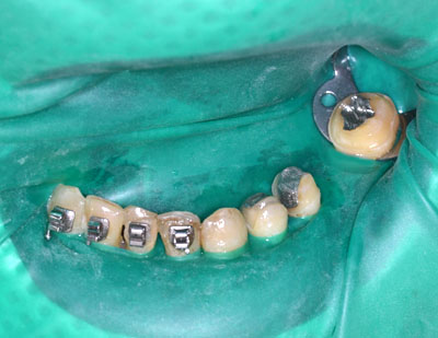 画像: インプラントをしない奥歯のゴールドブリッジ治療の様子