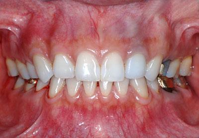 テトラサイクリンはホワイトニングで治るので歯を削る必要はない理由 GVBDO