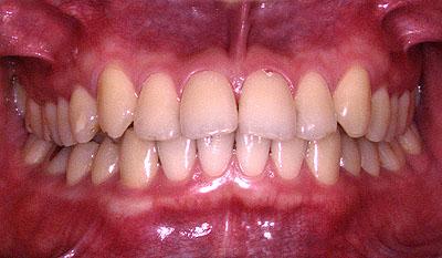 顎関節症でうつ病引きこもり不登校の大学生の歯並び