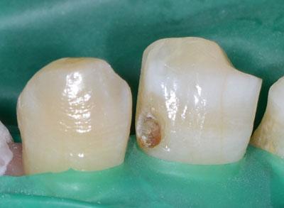 画像: Amalgamの治療をする時のラバーダム4