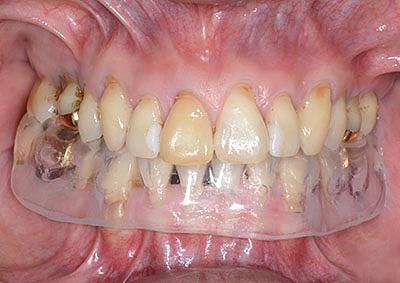 下のナイトガード,下のマウスピース,アメリカ歯科標準治療,G.V. BLACK DENTAL OFFICE, GVBDO