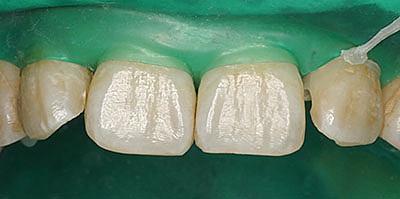 ↑ラバーダム・前歯に使う方法 GVBDO↑