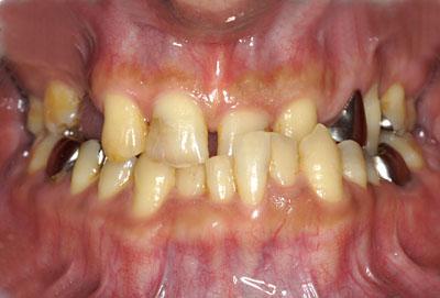 画像: 歯が死にたくなるほど悪かった人の様子