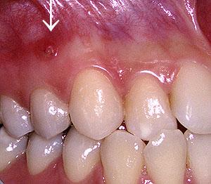画像:神経を抜いた歯がうずきフィスチュラができた様子