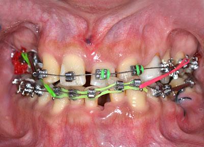 画像: 歯が死にたくなるほど悪かった人がかなり回復した様子