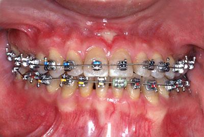 画像: 歯列矯正の失敗で顎関節症になったtetracycline着色歯の人の再矯正の様子