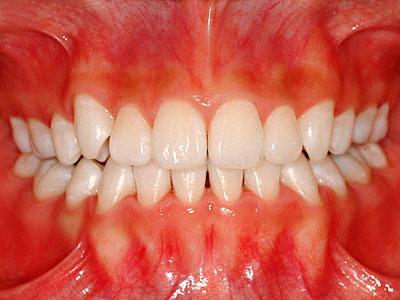 画像; 女子高生 歯列矯正終了後のホワイトニングの様子