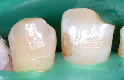 画像: Amalgamの治療をする時のラバーダム3