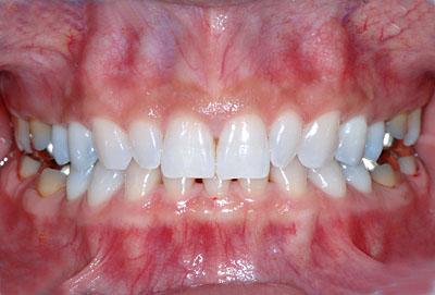 画像: 歯並びがスキッパでネズミの歯のような人が綺麗な歯並びになった様子