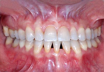 画像: テトラサイクリン着色歯の人の歯列矯正終了後の経過