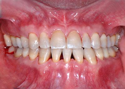 画像: テトラサイクリンの人の歯列矯正がBracket Offになった様子