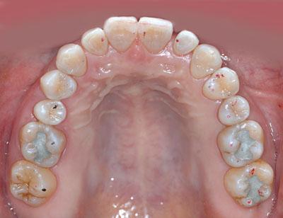 画像: ラバーダムを装着し前歯の虫歯の再治療をレジンで行っている様子