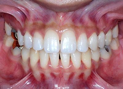 ホワイトニングをすると歯が痛くなるのはなぜ? GVBDO