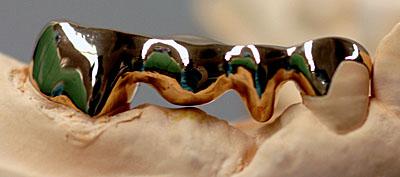↑2本抜歯でもインプラントは不要!一生持つブリッジの治療 GVBDO↑