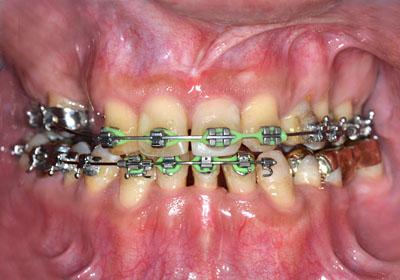 画像: 歯列矯正終了間際のインプラントをしない奥歯のゴールドブリッジ治療の様子