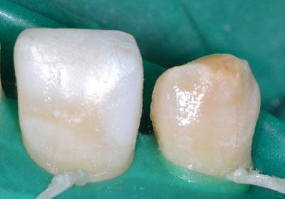 画像: 前歯の虫歯治療・レジンの下の虫歯4