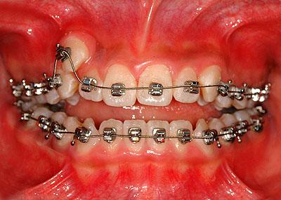 画像:八重歯 開咬 矯正女子 ブラケット装着 GVBDO