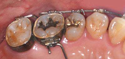 子供の歯,第一大臼歯,虫歯