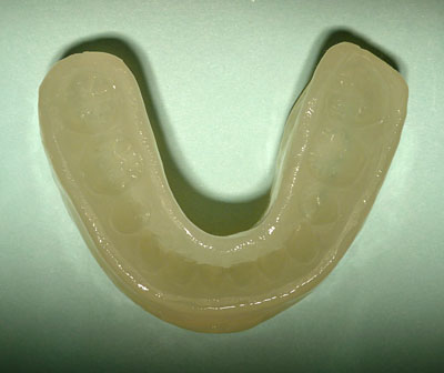 画像: Dynamic positioner ダイナミックポジショナー 歯列矯正保定装置