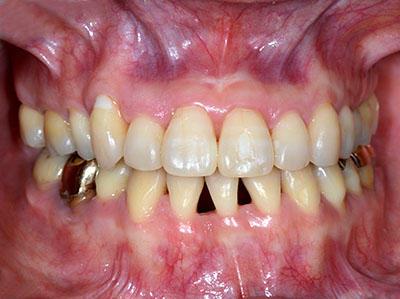 画像: 再矯正が必要な歯列矯正失敗の症例が完治した様子