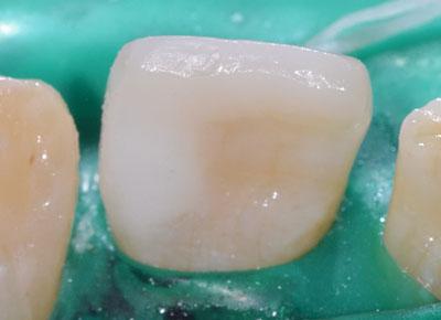 画像: 前歯の虫歯治療・レジンの下の虫歯8