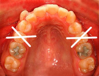 画像: 側湾症で悩む八重歯で開咬の女子中学生高校生の歯列矯正ロードマップ