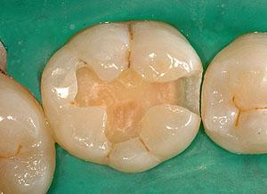 画像: 側湾症で悩む八重歯で開咬の女子中学生高校生のラバーダムでアマルガムの虫歯治療