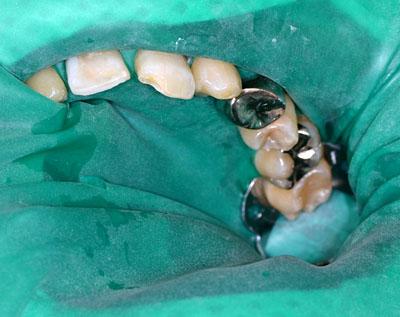 画像: 前歯のレジンの下の虫歯を治療する時のラバーダム