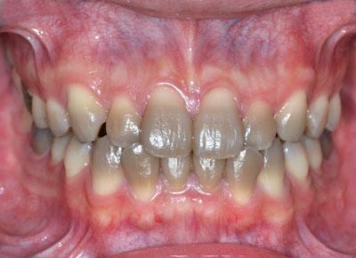 テトラサイクリン,着色歯,Tetracycline,ホワイトニング,歯を削る必要はない,実際, GVBDO