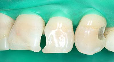 レジンボンディング,前歯,コンポジットレジン,審美歯科,セラミック矯正,スピードセラミック治療,ラバーダム,gvbdo