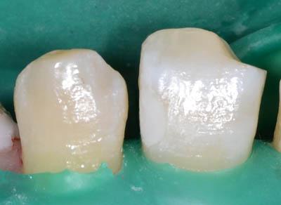 画像: Amalgamの治療をする時のラバーダム5